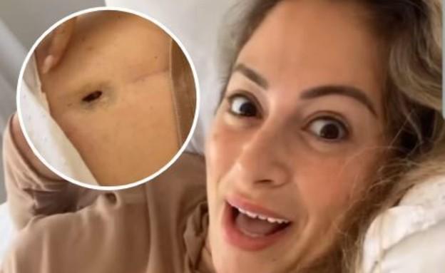 ליהיא גרינר חושפת בטן אחרי הניתוח, ינואר 2021 (צילום: מתוך האינסטגרם של ליהיא גרינר)