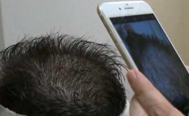 השתלת השיער של גיל מרנץ (צילום: מתוך