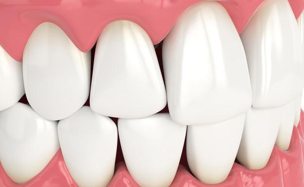 משולשים שחורים בין השיניים (צילום: Aleksandra Gigowska, shutterstock)