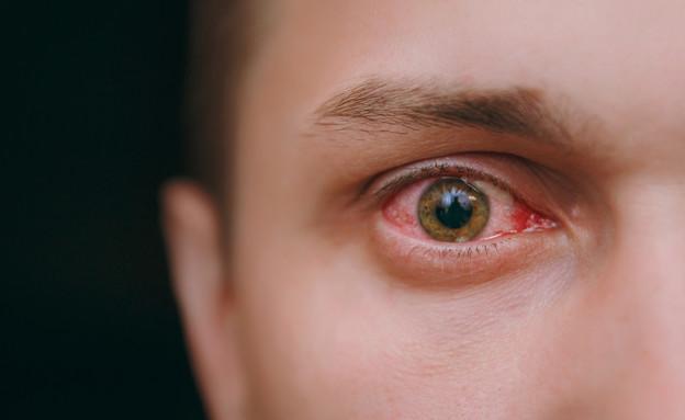 עין אדומה (צילום: ViDI Studio, Shutterstock)