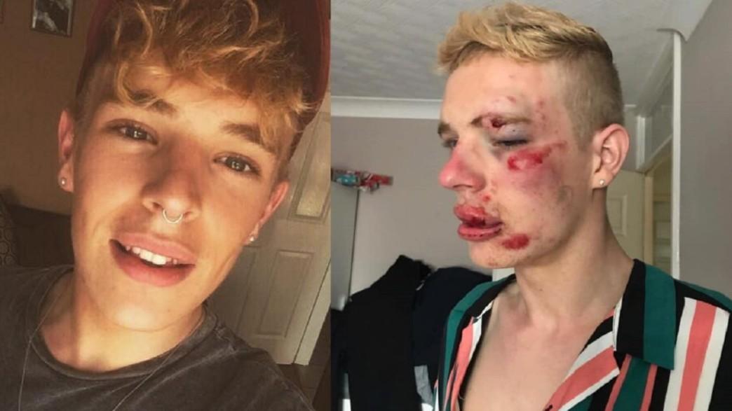 ריאן טרנר, לפני ואחרי התקיפה (צילום: facebook)