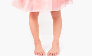רגליים עקומות בילדים (צילום: Arlee.P, shutterstock)