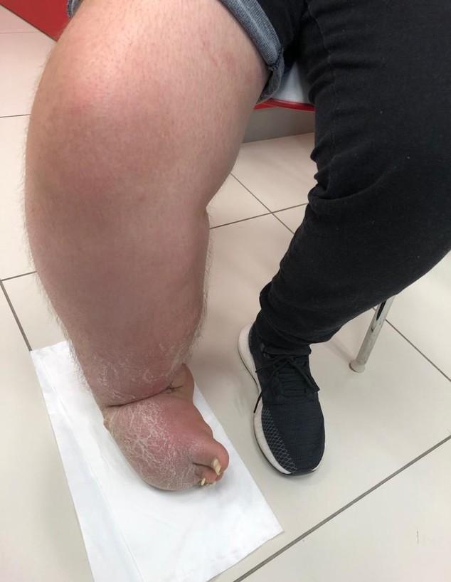 """הרגל של מרים  (צילום: הקריה הרפואית רמב""""ם)"""