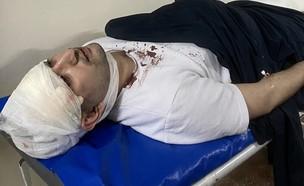 מיראזיז בזארוב אחרי התקיפה (צילום: מתוך עמוד הטוויטר Aga_Pik@, twitter)