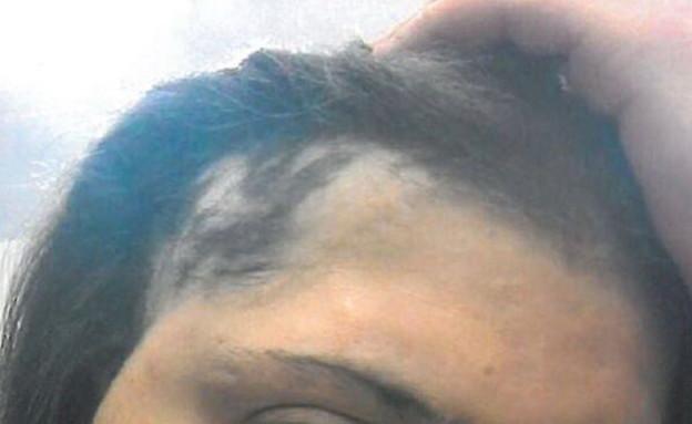 סכנת החלקת השיער: כך ממשיכים להשתמש בחומרים מסוכנים
