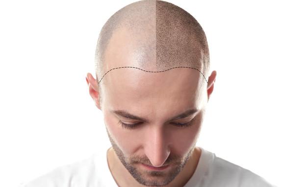 השתלת שיער (צילום: shutterstock By Africa Studio)