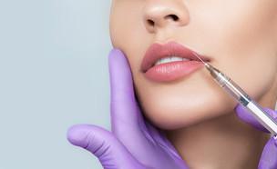 מילוי שפתיים, הזרקה (צילום: Peakstock, shutterstock)
