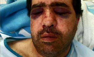 """תושב חיפה שהותקף והוכה קשות משחזר (צילום: מתוך """"חדשות הבוקר"""" , קשת 12)"""