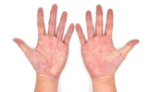 כפות ידיים אדומות (צילום:  Zay Nyi Nyi, shutterstock)