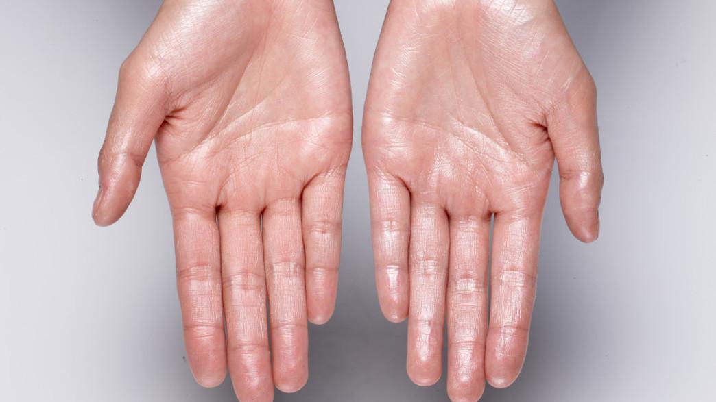 כפות ידיים מזיעות (צילום:  JoEimaGe, shutterstock)