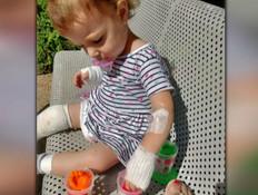 """בת שנתיים נכוותה קשה מגחלים בוערות (צילום: מתוך """"חדשות הבוקר"""" , קשת 12)"""