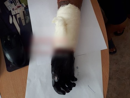 ילד עם פציעה בידו נלקח להילר - וזה נגמר בקטיעה