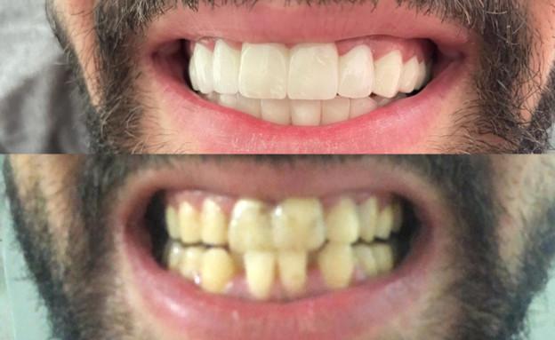 השתלת שיניים (צילום: באדיבות המצולם)