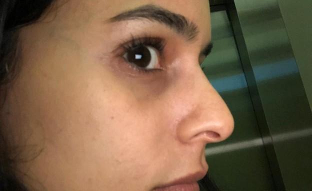 אורטל עמר שינתה את האף (צילום: פרטי)