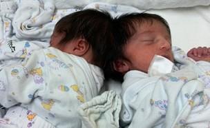 תאומות סיאמיות לפני שהופרדו בניתוח בבית חולים סורוקה (צילום: דובורת בית החולים סורוקה)