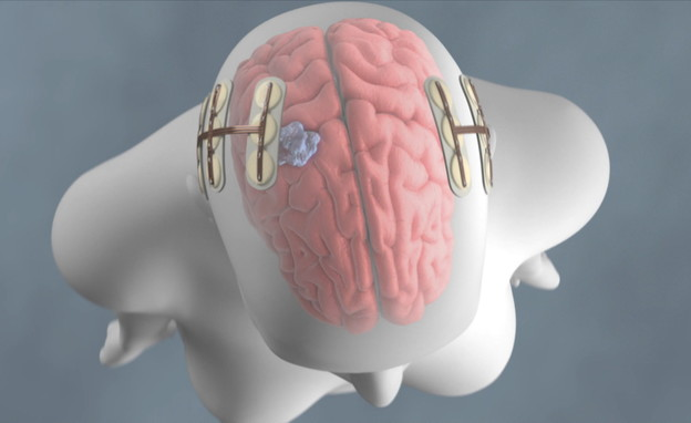 הדגמה לפעולת המכשיר לטיפול חשמלי בסרטן (צילום: חדשות 12)