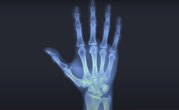 An X.ray of the palm proved the exact age in court